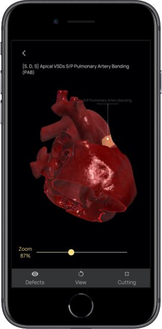 Zoom app modello 3D del cuore