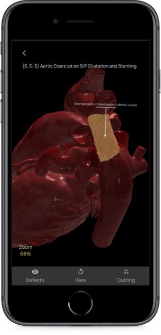 App evidenzia sezione del cuore 3D soggetta a difetti