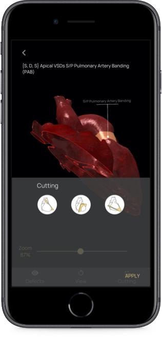 App con evidenziazione difetti del cuore 3D